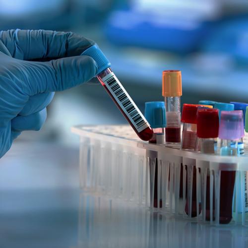 Seguridad en el manejo de Sustancias Químicos y Bioseguridad